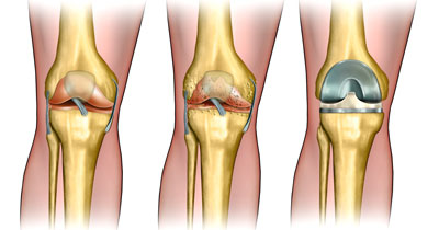 Total-Knee-Replacement-Before-After