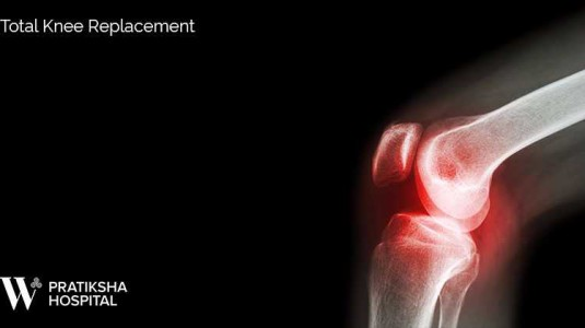 Best Total Knee replacement in Gurgaon